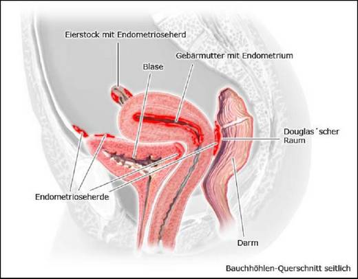 Lokalisation der Endometriose